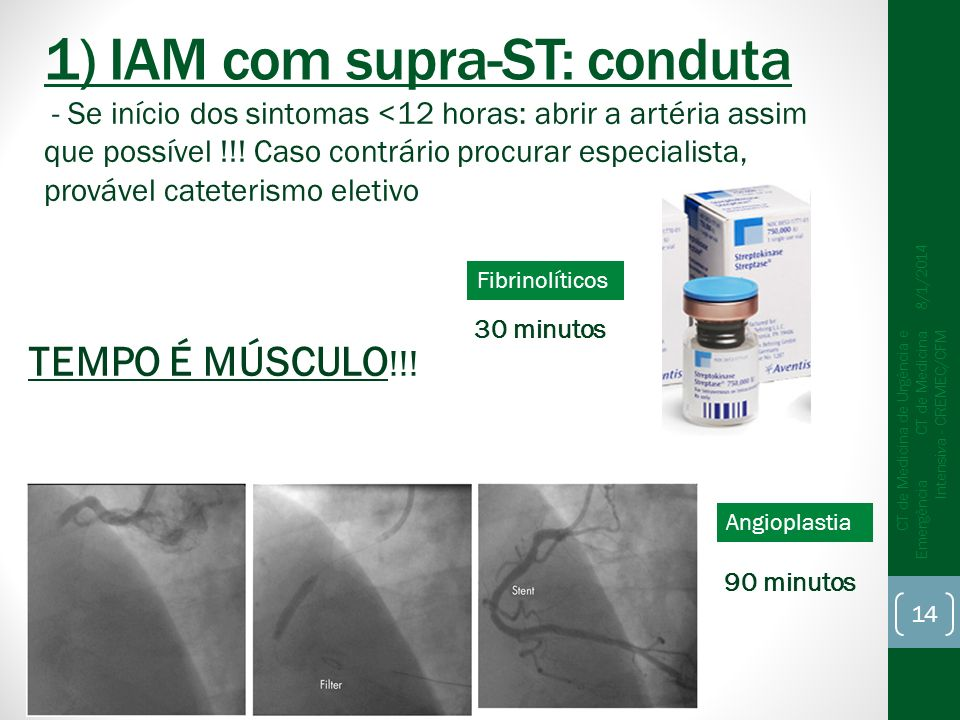 1) IAM com supra-ST: conduta