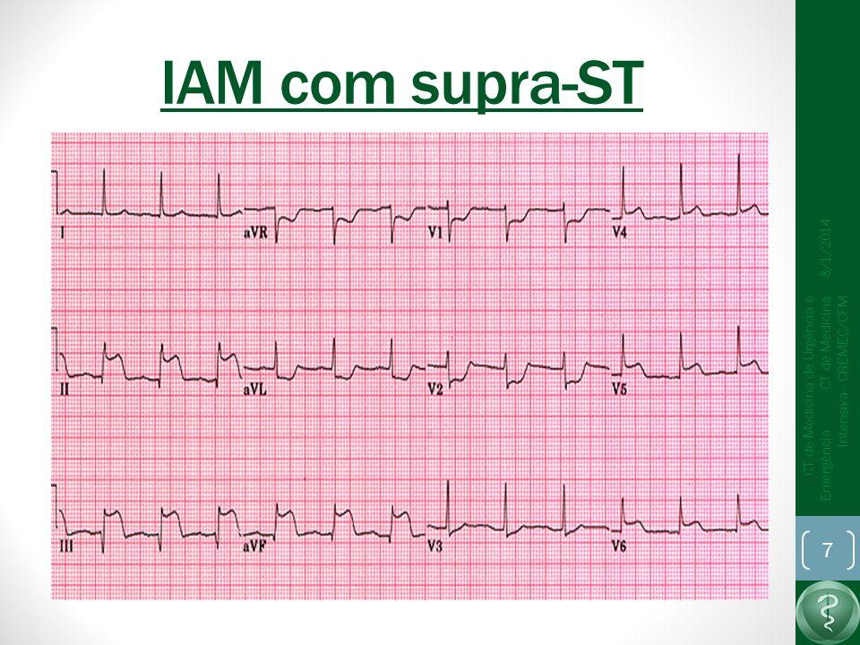 IAM com supra-ST 25/03/2017.