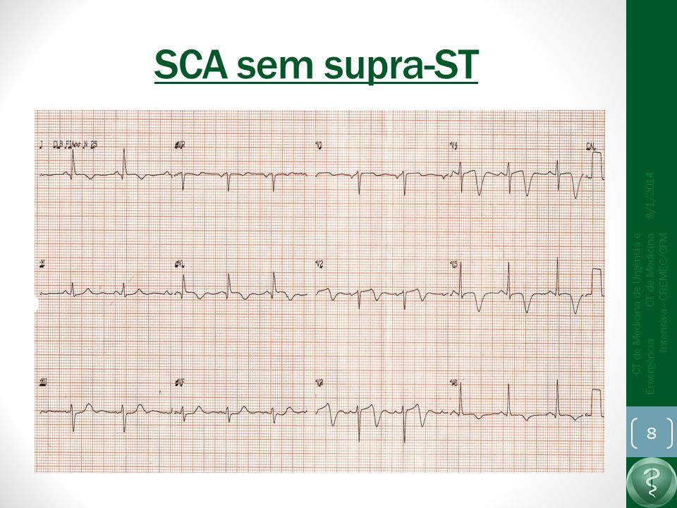 SCA sem supra-ST 25/03/2017.