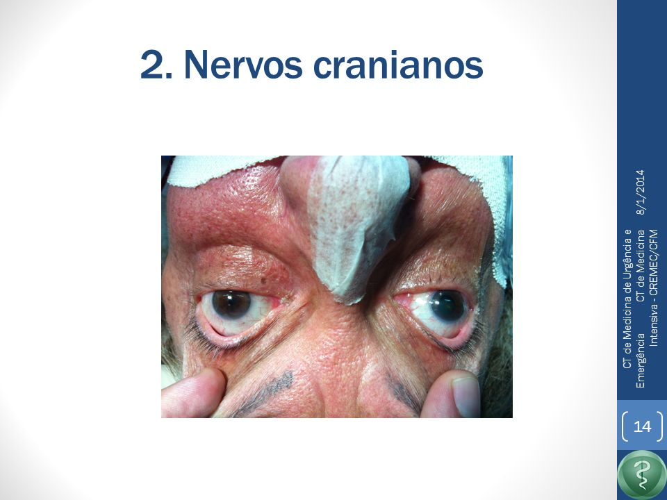 2. Nervos cranianos 25/03/2017.
