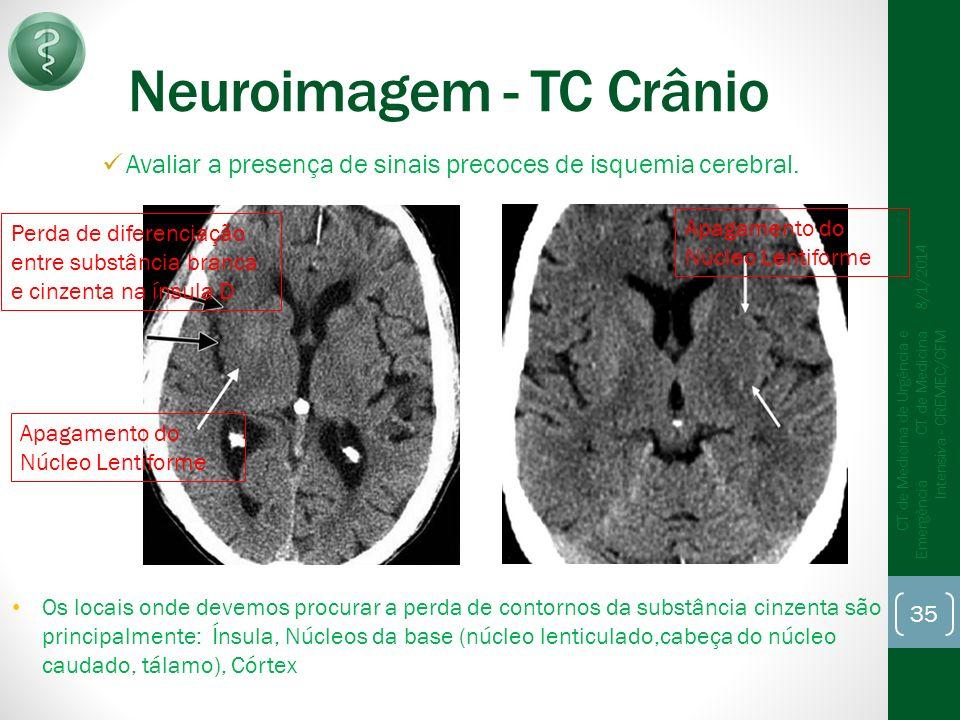Neuroimagem - TC Crânio