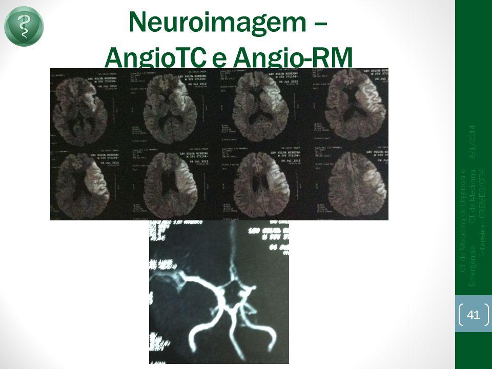 Neuroimagem – AngioTC e Angio-RM