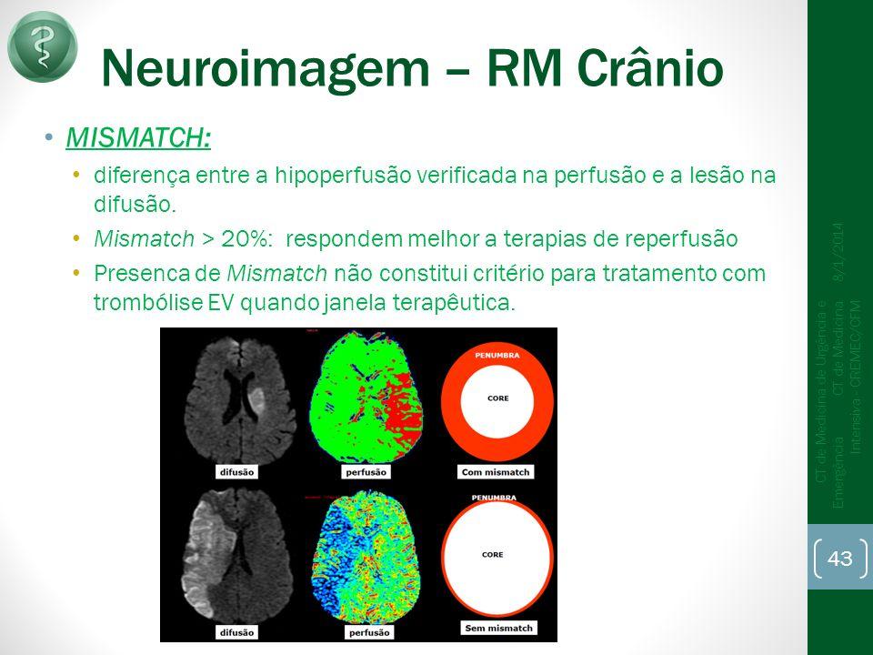 Neuroimagem – RM Crânio