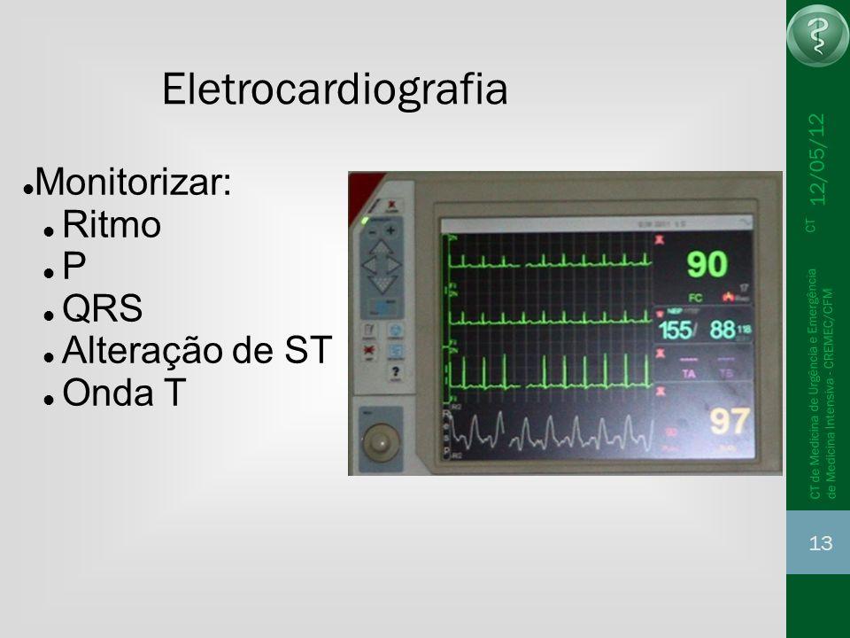 Eletrocardiografia Monitorizar: Ritmo P QRS Alteração de ST Onda T