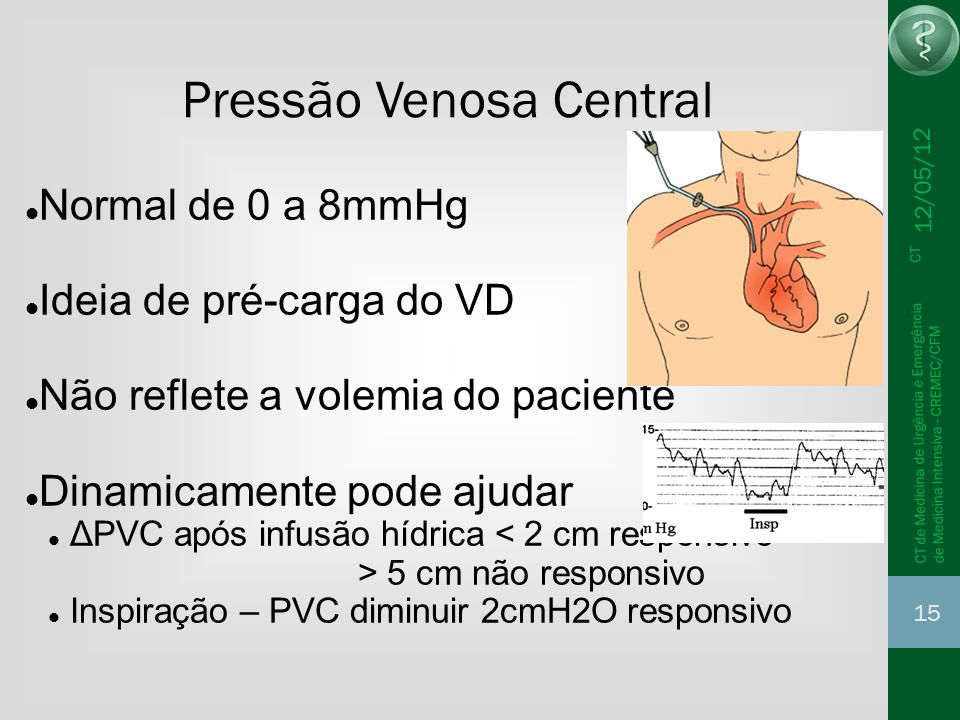 Pressão Venosa Central