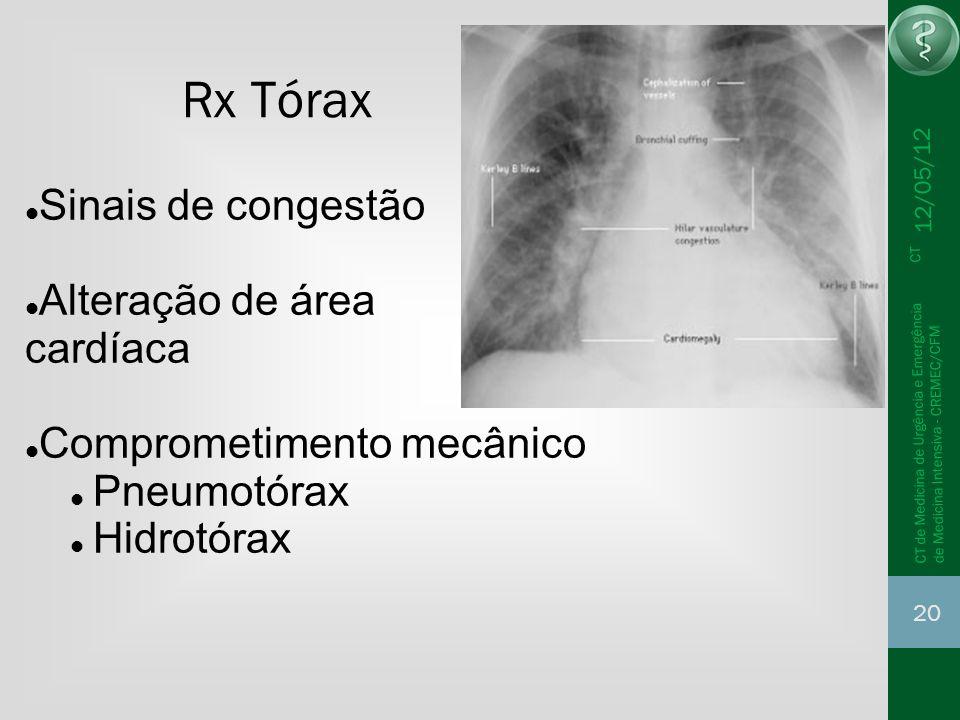 Rx Tórax Sinais de congestão Alteração de área cardíaca