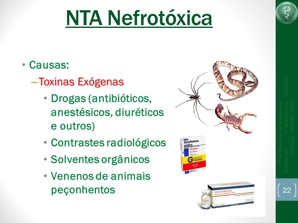 NTA Nefrotóxica Causas: Toxinas Exógenas