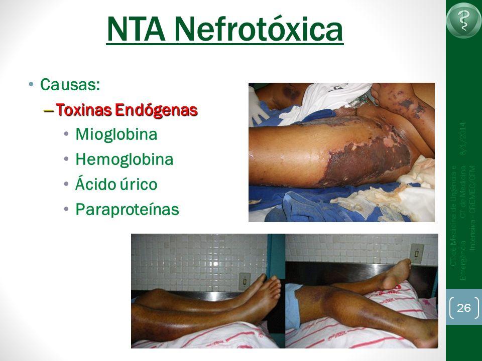 NTA Nefrotóxica Causas: Toxinas Endógenas Mioglobina Hemoglobina