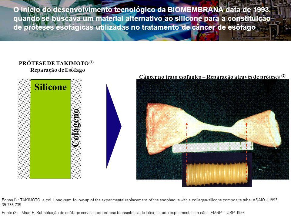 O inicio do desenvolvimento tecnológico da BIOMEMBRANA data de 1993, quando se buscava um material alternativo ao silicone para a constituição de próteses esofágicas utilizadas no tratamento de câncer de esôfago