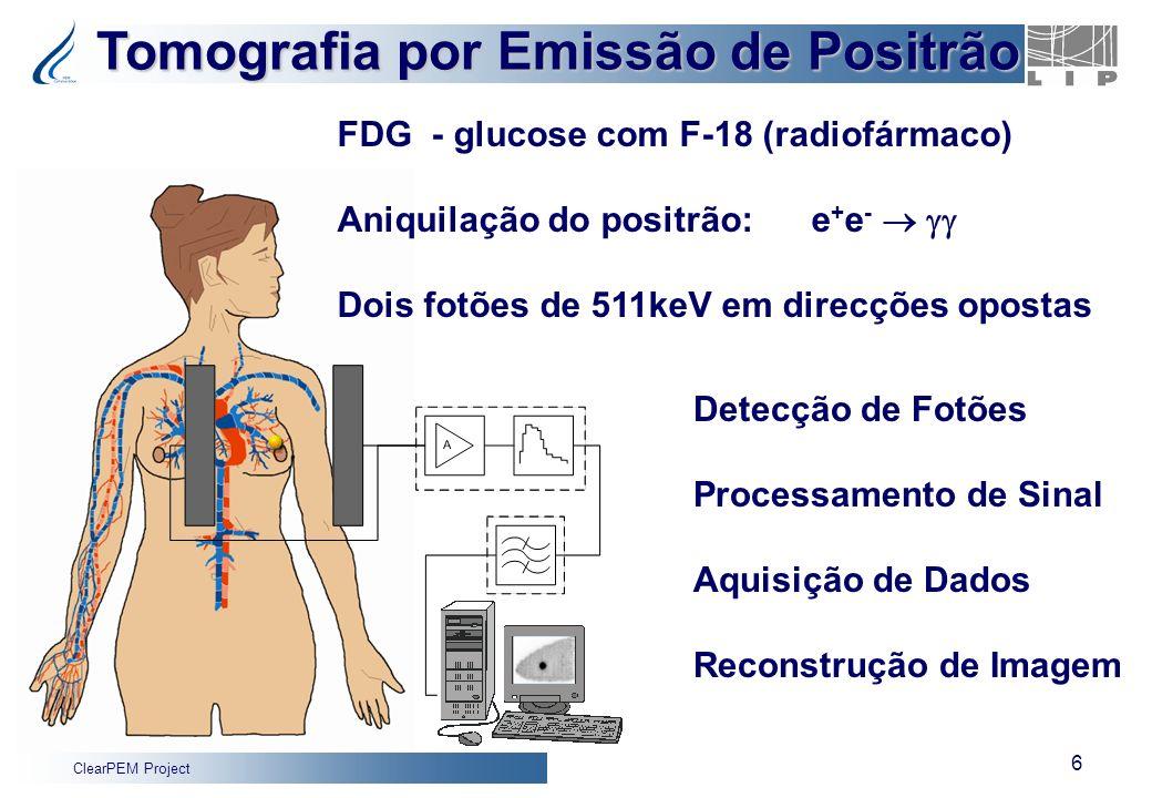 Tomografia por Emissão de Positrão