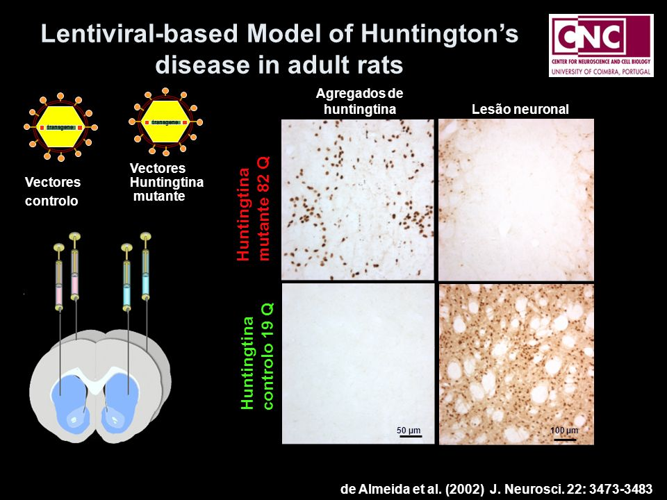 Lentiviral-based Model of Huntington's disease in adult rats