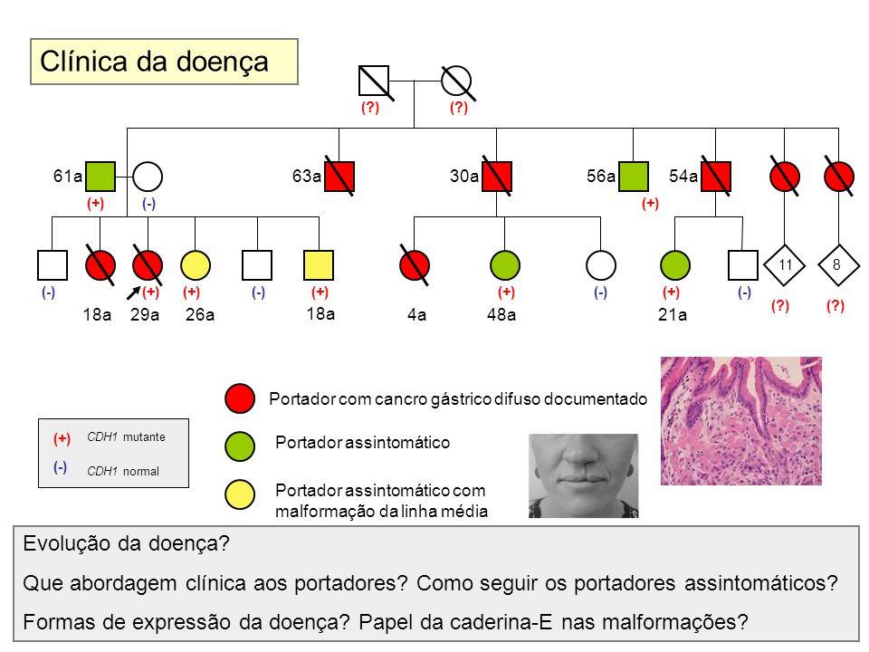 Clínica da doença Evolução da doença