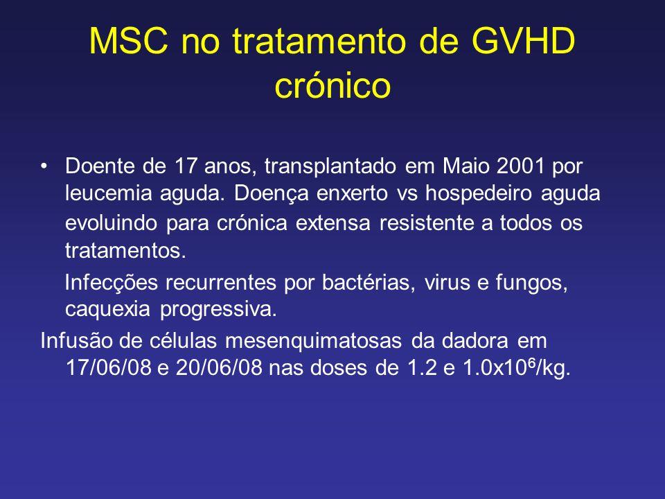 MSC no tratamento de GVHD crónico