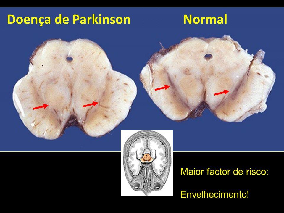Doença de Parkinson Normal Maior factor de risco: Envelhecimento!