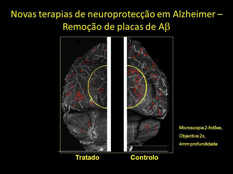 Novas terapias de neuroprotecção em Alzheimer – Remoção de placas de Ab