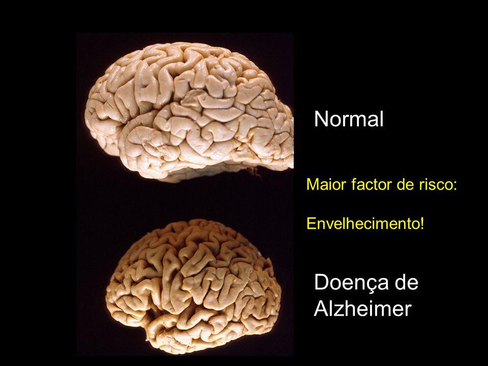 Normal Maior factor de risco: Envelhecimento! Doença de Alzheimer