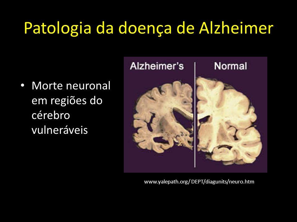 Patologia da doença de Alzheimer