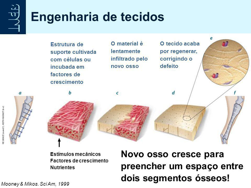 Engenharia de tecidos Estrutura de suporte cultivada com células ou incubada em factores de crescimento.