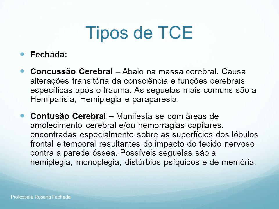 Tipos de TCE Fechada: