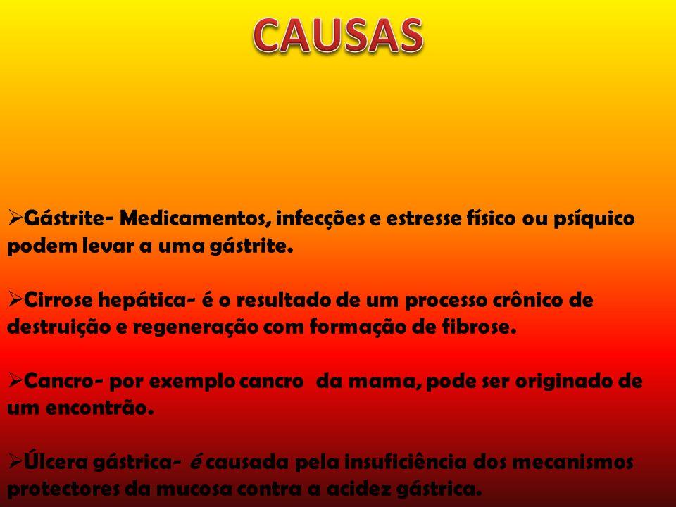 CAUSAS Gástrite- Medicamentos, infecções e estresse físico ou psíquico podem levar a uma gástrite.