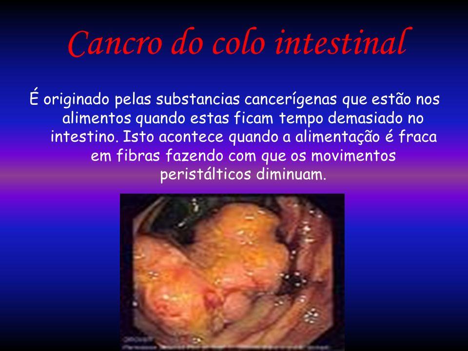 Cancro do colo intestinal