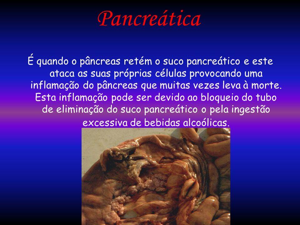 Pancreática
