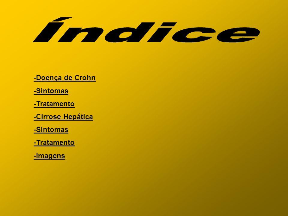Índice -Doença de Crohn -Sintomas -Tratamento -Cirrose Hepática