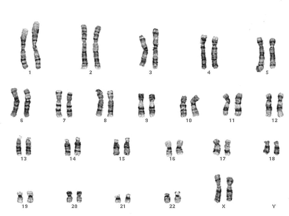 Núcleo celular 7. Cariótipo e genoma