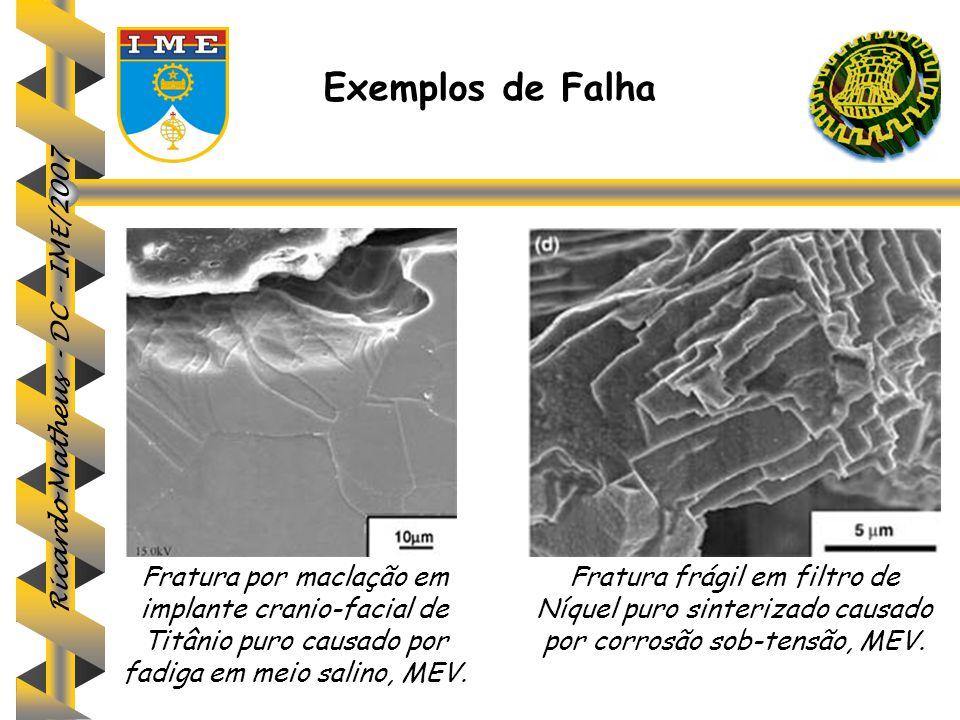 Exemplos de Falha Fratura por maclação em implante cranio-facial de Titânio puro causado por fadiga em meio salino, MEV.