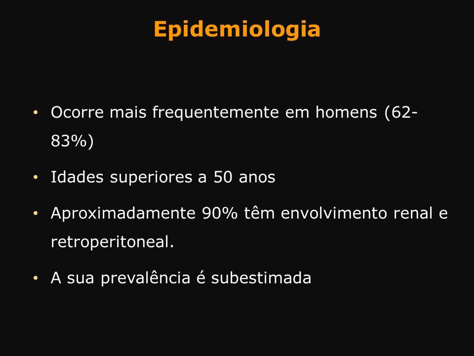 Epidemiologia Ocorre mais frequentemente em homens (62- 83%)