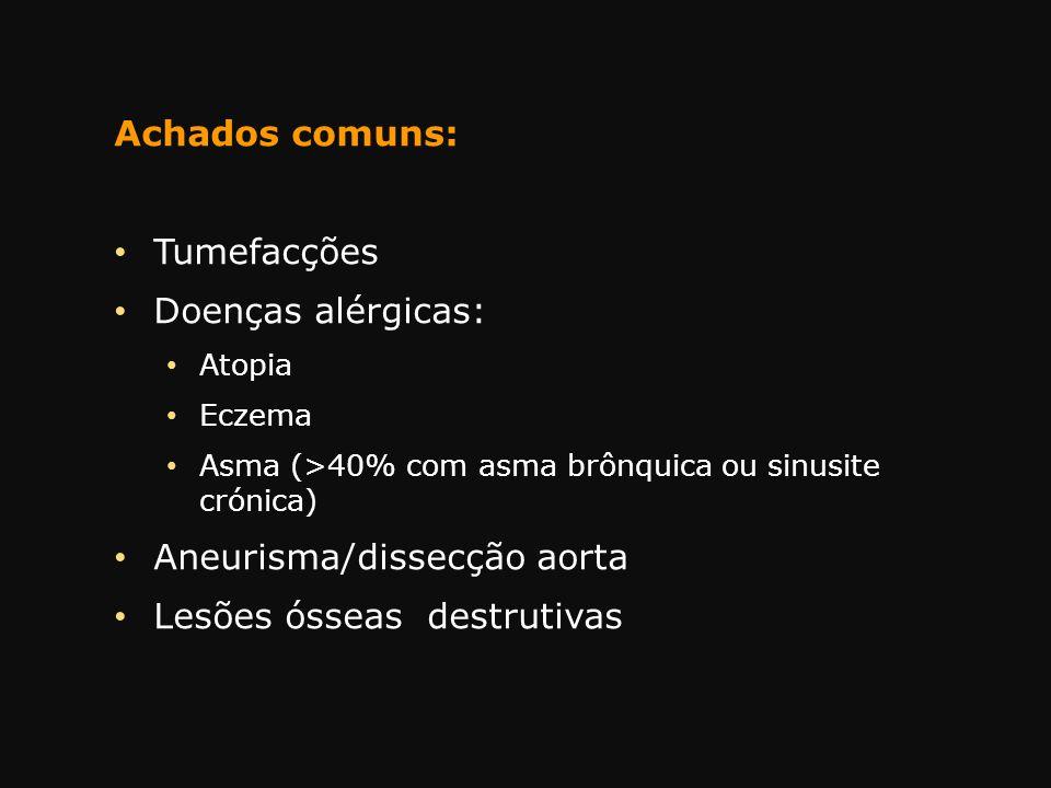 Aneurisma/dissecção aorta Lesões ósseas destrutivas