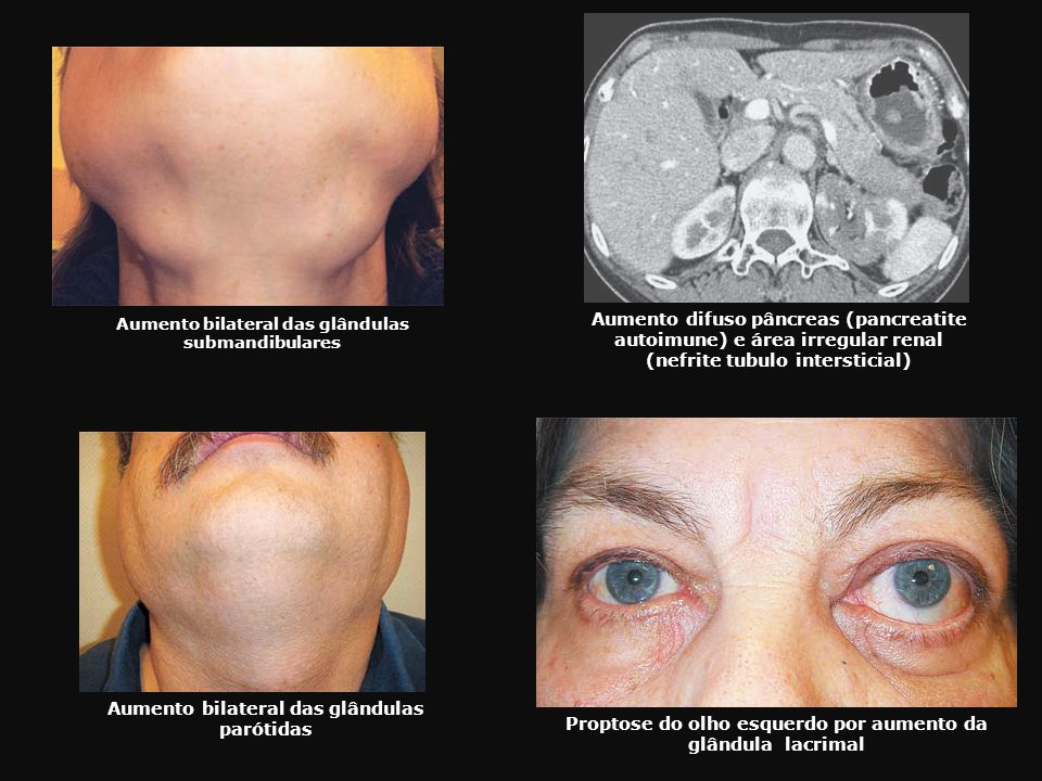 Aumento difuso pâncreas (pancreatite autoimune) e área irregular renal