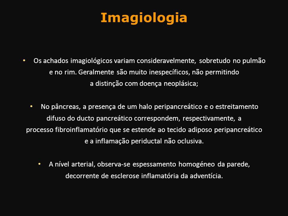 Imagiologia Os achados imagiológicos variam consideravelmente, sobretudo no pulmão. e no rim. Geralmente são muito inespecíficos, não permitindo.