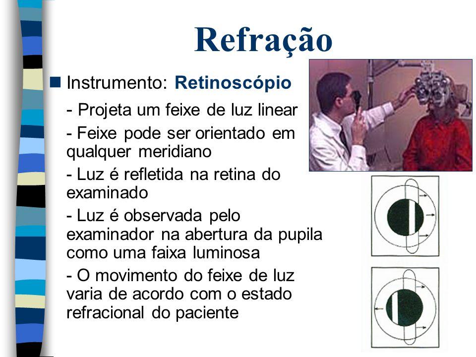 Refração Instrumento: Retinoscópio - Projeta um feixe de luz linear