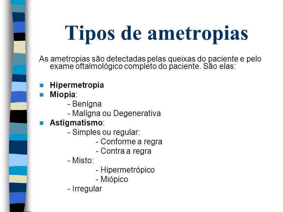 Tipos de ametropias As ametropias são detectadas pelas queixas do paciente e pelo exame oftalmológico completo do paciente. São elas: