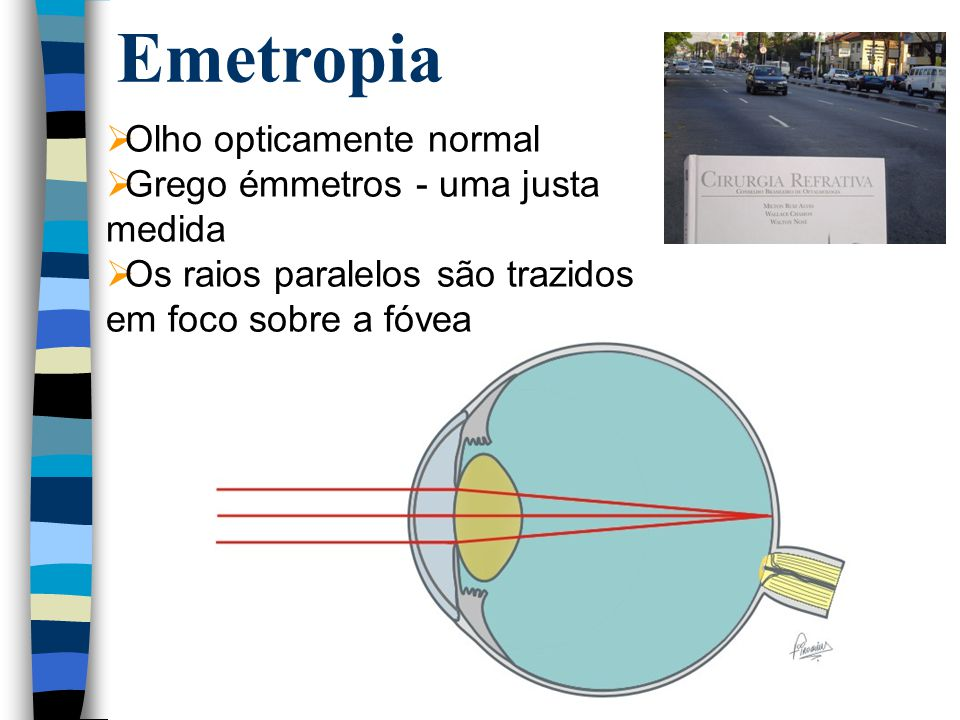 Emetropia Olho opticamente normal Grego émmetros - uma justa medida