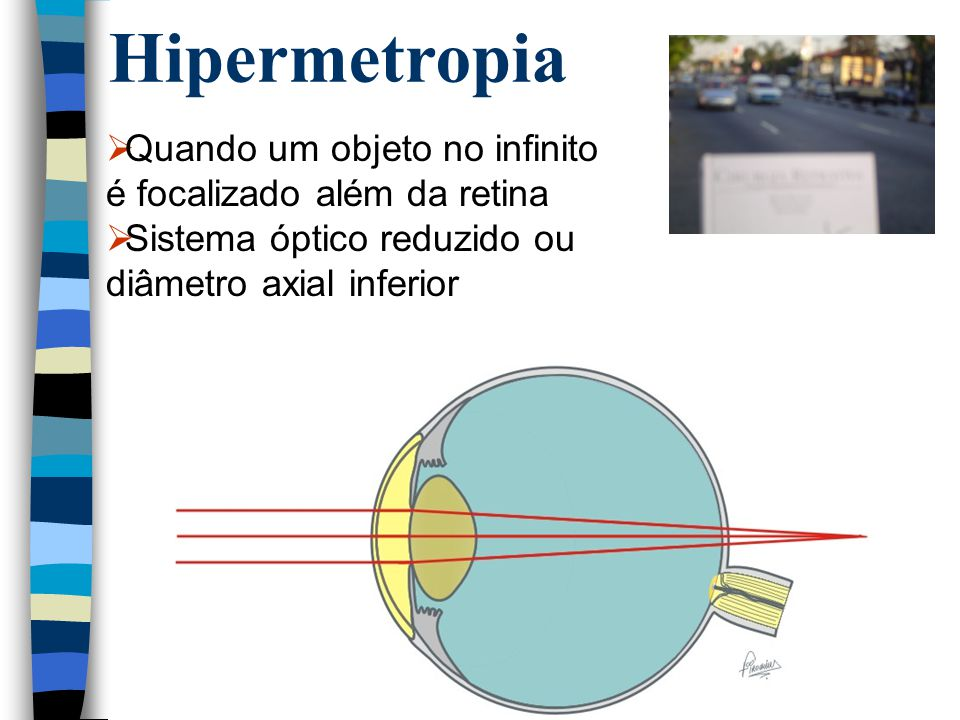 Hipermetropia Quando um objeto no infinito é focalizado além da retina
