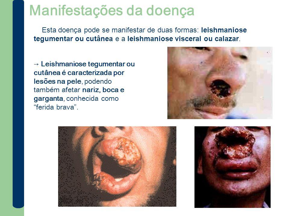 Manifestações da doença