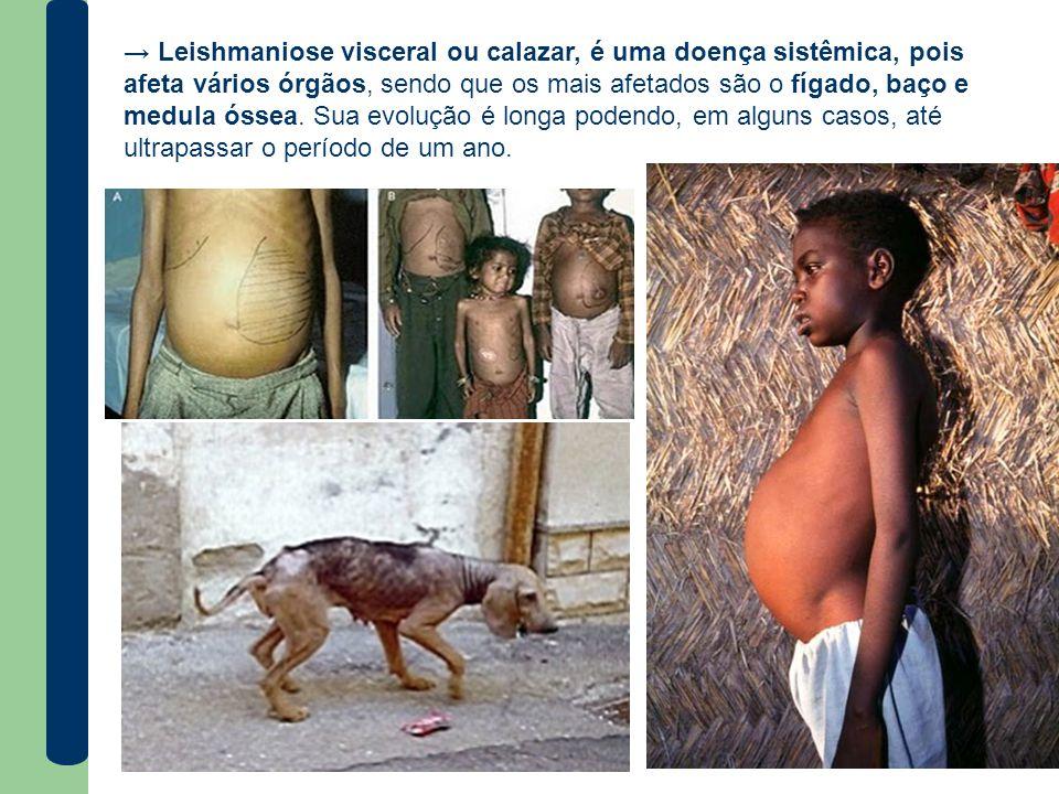 → Leishmaniose visceral ou calazar, é uma doença sistêmica, pois afeta vários órgãos, sendo que os mais afetados são o fígado, baço e medula óssea.