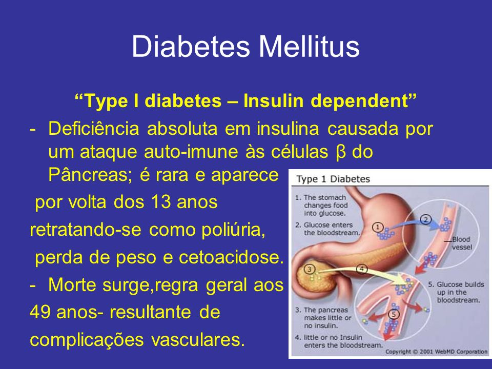 Type I diabetes – Insulin dependent