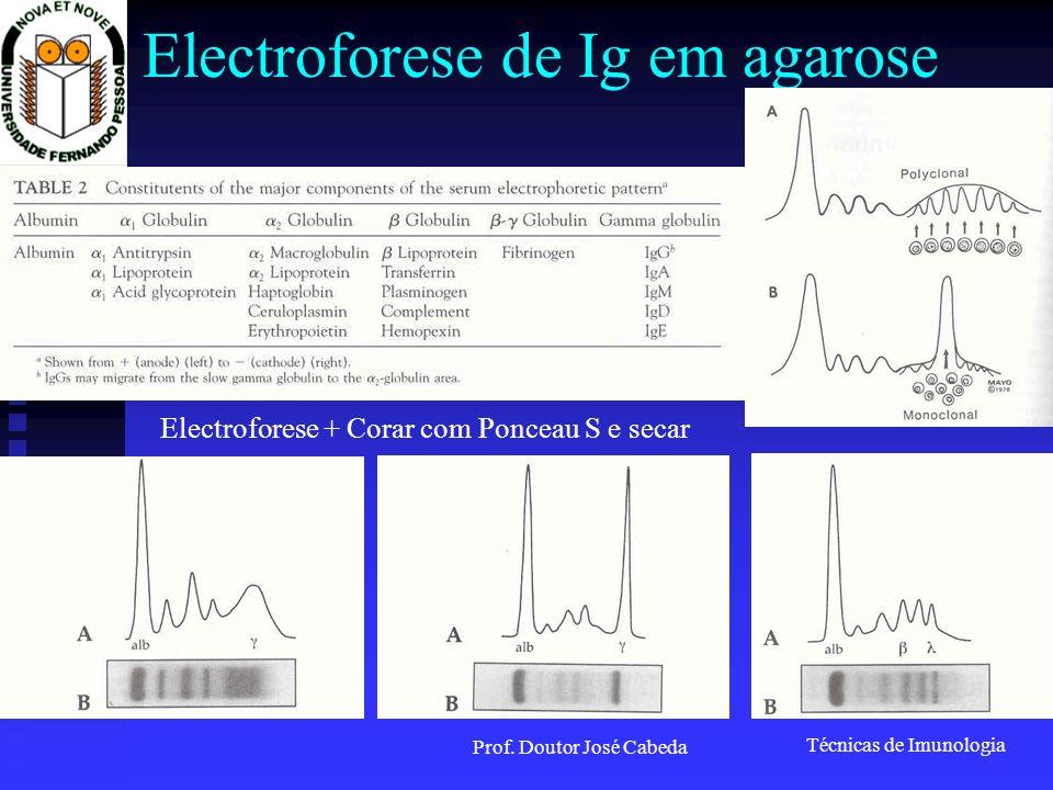 Electroforese de Ig em agarose