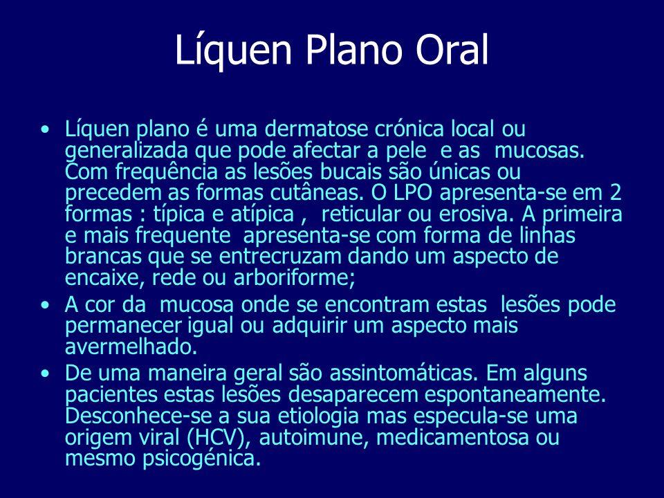 Líquen Plano Oral