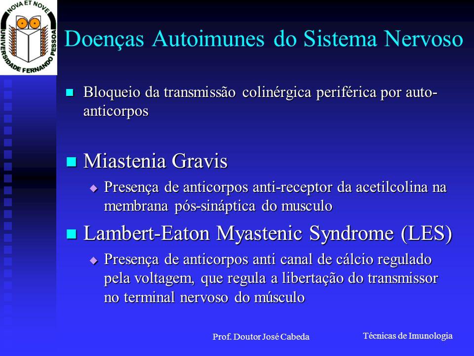 Doenças Autoimunes do Sistema Nervoso