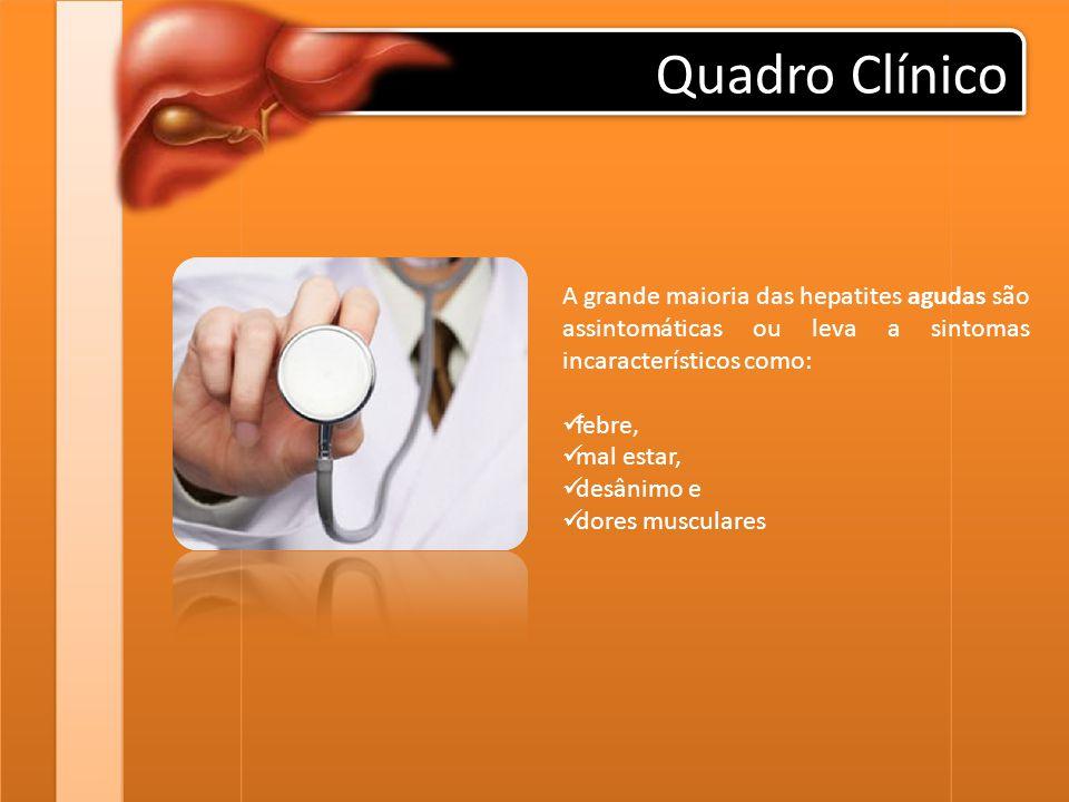 Quadro Clínico A grande maioria das hepatites agudas são assintomáticas ou leva a sintomas incaracterísticos como: