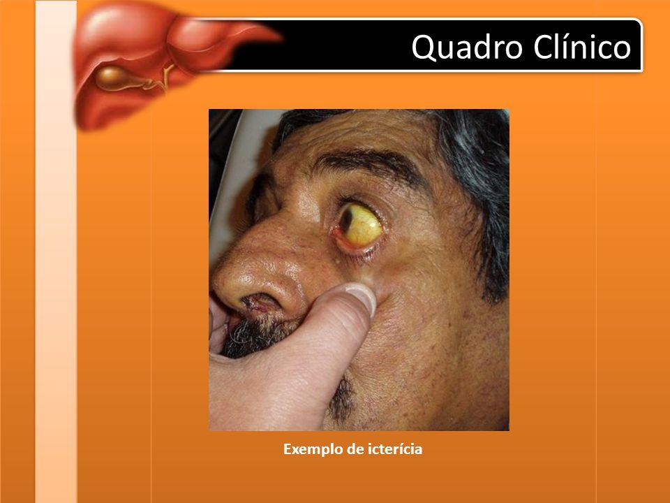 Quadro Clínico Exemplo de icterícia