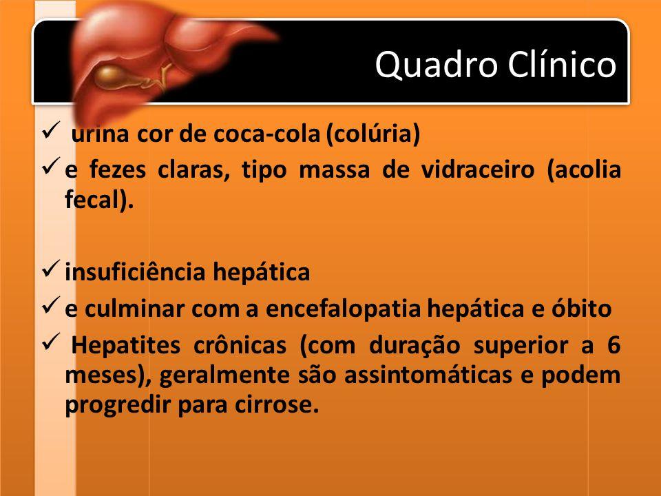 Quadro Clínico urina cor de coca-cola (colúria)