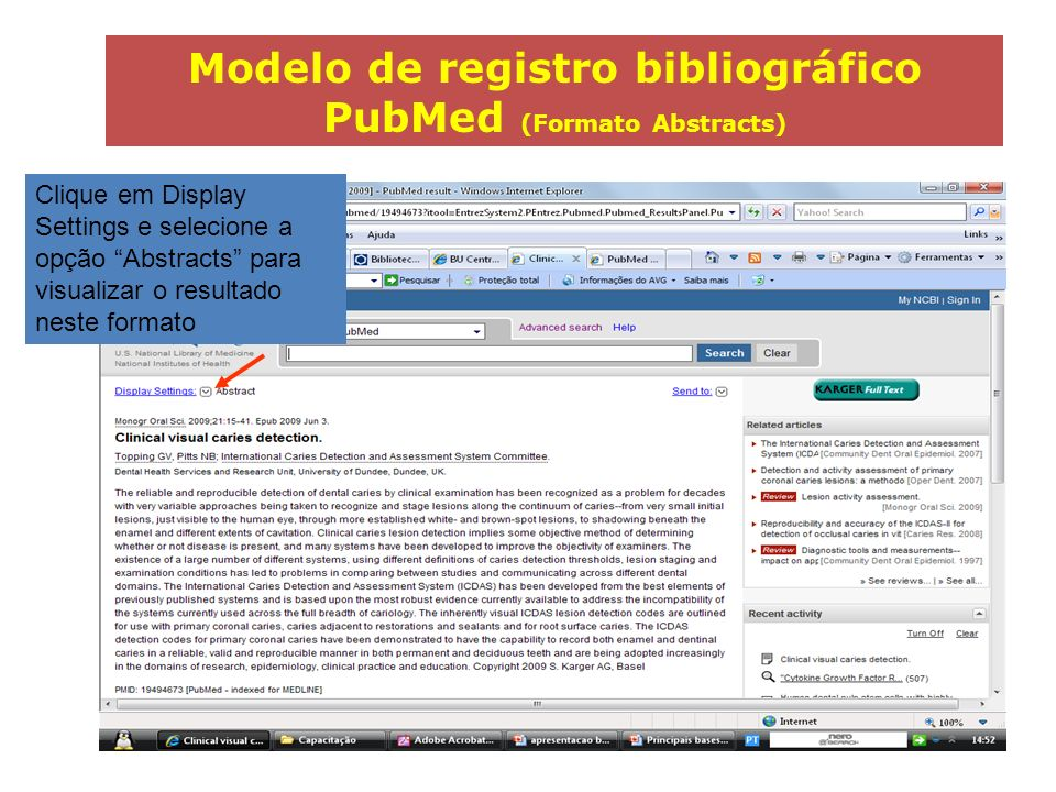 Modelo de registro bibliográfico PubMed (Formato Abstracts)