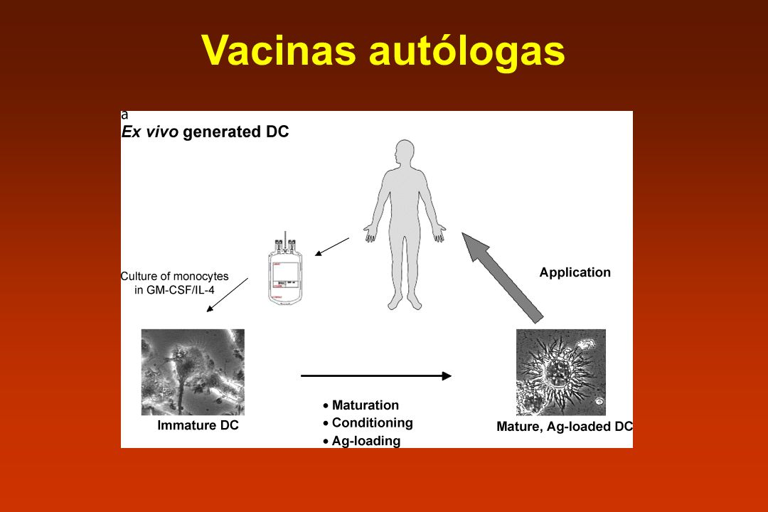 Vacinas autólogas