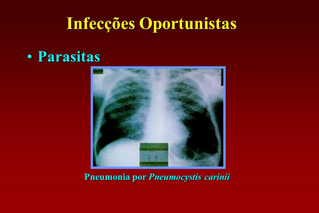 Infecções Oportunistas Pneumonia por Pneumocystis carinii