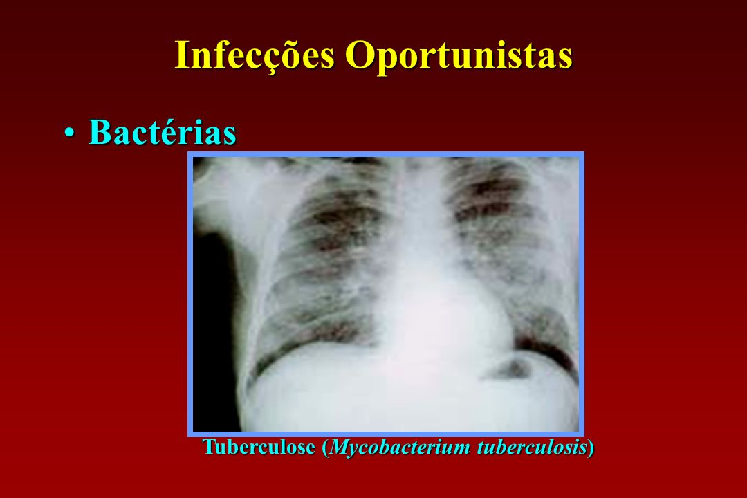 Infecções Oportunistas Tuberculose (Mycobacterium tuberculosis)